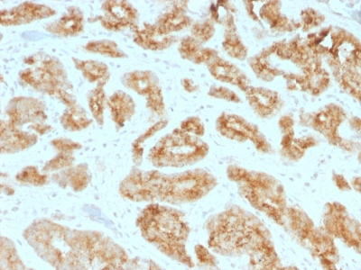 Formalin-fixed, paraffin-embedded human Prostate Carcinoma  Stained with AMACR / p54S Monoclonal Antibody (AMACR/1723)