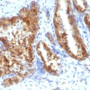 Formalin-fixed, paraffin-embedded human Lung Carcinoma stained with AMACR / p54S Rabbit Polyclonal Antibody.