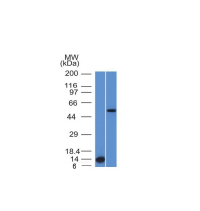 Western Blot Analysis (A) Recombinant Protein (B) HepG2 Cell lysate Using ALK-1 Monoclonal Antibody (ALK/153).