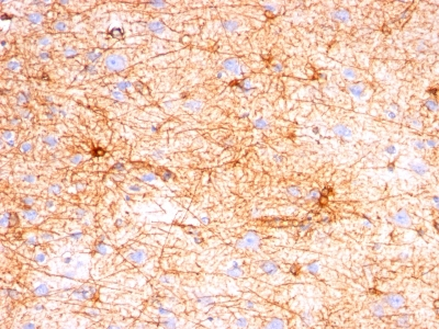 Formalin-fixed, paraffin-embedded human Cerebellum stained with GFAP Monoclonal Antibody (SPM57).