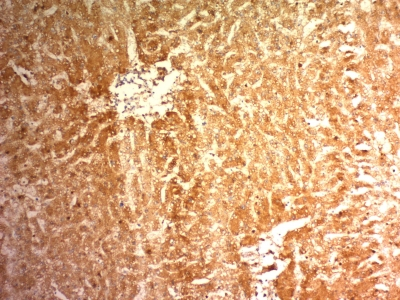 Formalin-fixed, paraffin-embedded human Hepatocellular Carcinoma stained with Glypican-3 Monoclonal Antibody (1G12)