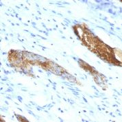 Formalin-fixed, paraffin-embedded human Colon Carcinoma stained with Blood Group Antigen A Monoclonal Antibody (33C13)