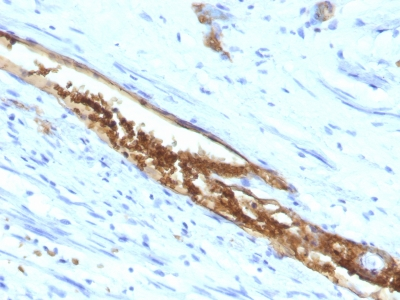 Formalin-fixed, paraffin-embedded human Colon Carcinoma stained with Blood Group Antigen A Monoclonal Antibody (3-3A)