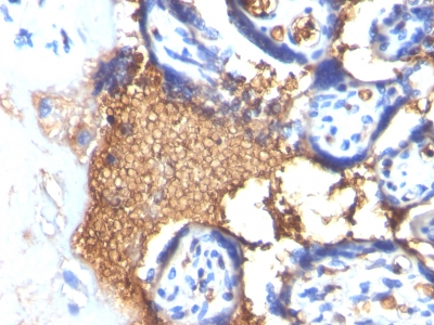 Formalin-fixed, paraffin-embedded human Angiosarcoma stained with Glycophorin A Monoclonal Antibody (GYPA/28)