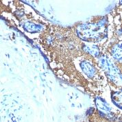 Formalin-fixed, paraffin-embedded human Angiosarcoma Stained with Glycophorin A Monoclonal Antibody (SPM599)