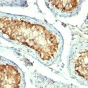 Formalin-fixed, paraffin-embedded human Tonsil stained with HSP6 Monoclonal Antibody (GROEL/73)