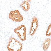 Formalin-fixed, paraffin-embedded human Prostate Carcinoma stained with PSA Monoclonal Antibody (A67-B/E3).