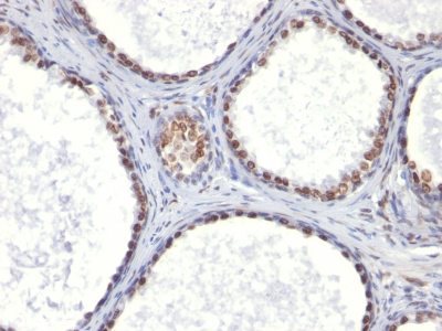 Formalin-paraffin human Prostate Carcinoma stained with Androgen Receptor Monoclonal Antibody (AR441).