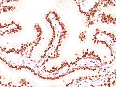 Formalin-fixed, paraffin-embedded human prostate carcinoma stained with Androgen Receptor Monoclonal Antibody (AR441 + DHTR/882).