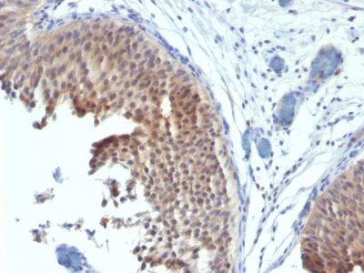 Formalin-fixed, paraffin-embedded human Bladder Carcinoma stained with Cytokeratin 6 Monoclonal Antibody (SPM269)
