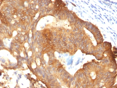 Formalin-fixed, paraffin-embedded Colon Carcinoma stained with Cytokeratin 8 Monoclonal Antibody (B22.1).