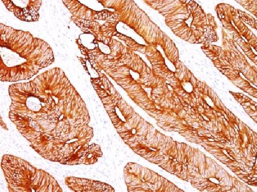 Anti-Cytokeratin 8 Anti-HumanAntibody Validation Data