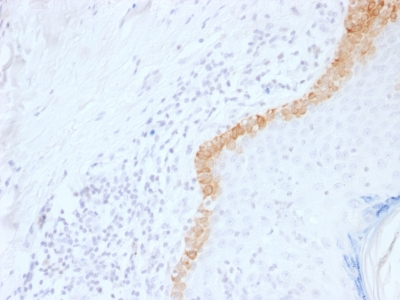 Formalin-fixed, paraffin-embedded human Skin Stained with Cytokeratin 15 Monoclonal Antibody (LHK15).