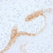 Formalin-fixed, paraffin-embedded human Basal Cell Carcinoma stained with Cytokeratin 15 Monoclonal Antibody (KRT15/1699).