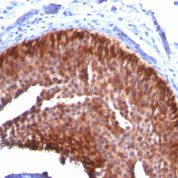 Formalin-fixed, paraffin-embedded human Cervical Carcinoma stained with CK17 Monoclonal Antibody (KRT17/778).