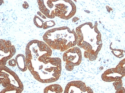 Formalin-fixed, paraffin-embedded human Colon Carcinoma stained with Cytokeratin 18 Monoclonal Antibody (DE-K18).
