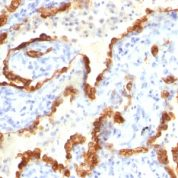 Formalin-fixed, paraffin-embedded human Thyroid Carcinoma stained with Cytokeratin 18 Monoclonal Antibody (Cocktail).