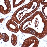 Formalin-fixed, paraffin-embedded human Colon Carcinoma stained with Cytokeratin 19 Monoclonal Antibody (BA17)