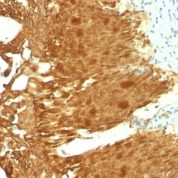 Formalin-fixed, paraffin-embedded human Bladder Carcinoma stained with Cytokeratin 19 Monoclonal Antibody (KRT19/799 + KRT19/8)