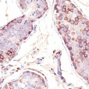Formalin-fixed, paraffin-embedded human Testis stained with MAGE-1 Monoclonal Antibody (SPM282).