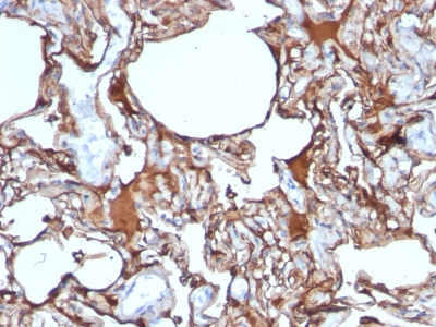 Formalin-fixed, paraffin-embedded human Melanoma stained with MCAM Monoclonal Antibody (SPM62)