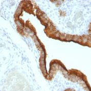 Formalin-fixed, paraffin-embedded human Ovarian Carcinoma stained with EMA Monoclonal Antibody (HMPV).