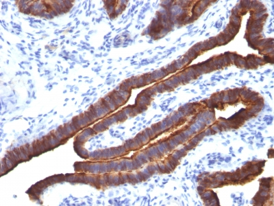 Formalin-fixed, paraffin-embedded human Colon Carcinoma stained with MUC-1 / EMA Monoclonal Antibody (MUC1/52).