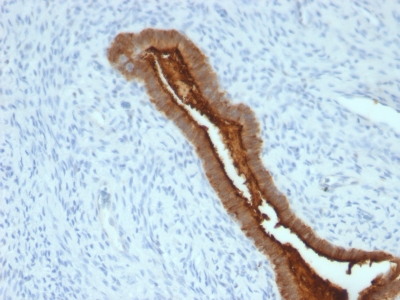 Formalin-fixed, paraffin-embedded human Endometrial Carcinoma stained with EMA Monoclonal Antibody (SPM492).