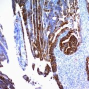 Formalin-fixed, paraffin-embedded human Colon Carcinoma stained with MUC2 Monoclonal Antibody (SPM296).