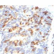Formalin-fixed, paraffin-embedded human Colon Carcinoma stained with MUC2 Monoclonal Antibody (MLP/842).