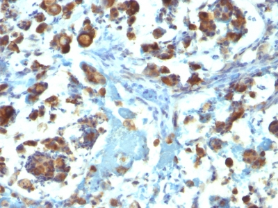 Formalin-fixed, paraffin-embedded human Gastric Carcinoma stained with MUC3 Monoclonal Antibody (M3.1).
