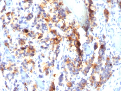 Formalin-fixed, paraffin-embedded human Gastric Carcinoma stained with MUC5AC Monoclonal Antibody (SPM297).
