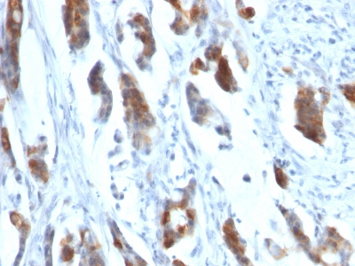 Formalin-fixed, paraffin-embedded human Gastric Carcinoma stained with MUC5AC Monoclonal Antibody (58M1).
