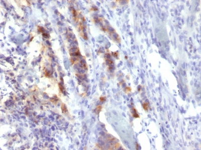 Formalin-fixed, paraffin-embedded human Gastric Carcinoma stained with MUC5AC Monoclonal Antibody (SPM488).