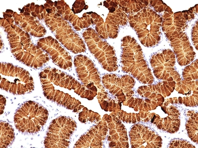 Formalin-fixed, paraffin-embedded human Gastric Carcinoma stained with MUC5AC Monoclonal Antibody (MUC5AC/917 + 45M1).
