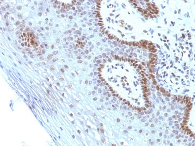Formalin-fixed, paraffin-embedded human Cervical Carcinoma stained with c-myc Monoclonal Antibody (SPM237).