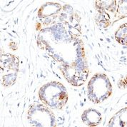 Formalin-fixed, paraffin-embedded human Leiomyosarcoma stained with SM-MHC Monoclonal Antibody (SMMS-1).