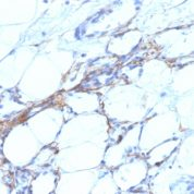 Formalin-fixed, paraffin-embedded human Angiosarcoma stained with SM-MHC Monoclonal Antibody (SPM21).