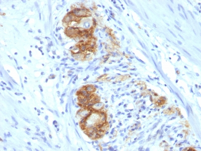 Formalin-fixed, paraffin-embedded human Colon Ganglion stained with CD56 Monoclonal Antibody (123C3.D5)