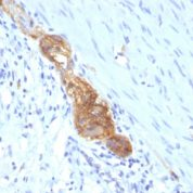 Formalin-fixed, paraffin-embedded human Colon stained with CD56 Monoclonal Antibody (SPM489)