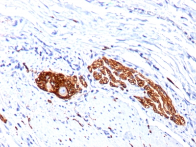 Formalin-fixed, paraffin-embedded human Lung Carcinoma stained with CD56 Monoclonal Antibody (123C3.D5 + 123A8)