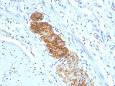 Formalin-fixed, paraffin-embedded human Colon stained with CD56 Monoclonal Antibody (NCAM1/784)