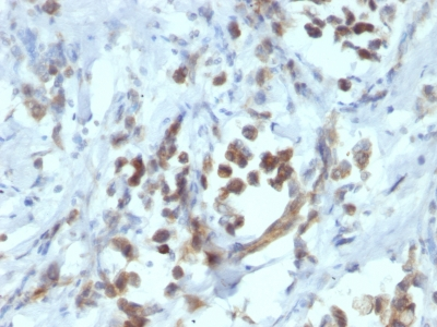 Formalin-fixed, paraffin-embedded human Gastric Carcinoma stained with PAX6 Monoclonal Antibody (PAX6/1166).