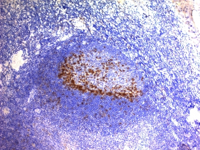 Formalin-fixed, paraffin-embedded human Tonsil stained with PD1 (CD279) Monoclonal Antibody (SPM597).