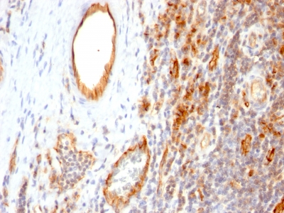Formalin-fixed, paraffin-embedded human Tonsil stained with CD31 Monoclonal Antibody (1A1)