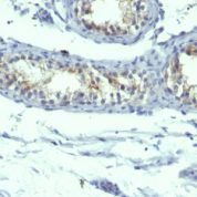 Formalin-fixed, paraffin-embedded human Testicular Carcinoma stained with Prolactin Receptor Monoclonal Antibody (B6.2 + PRLR742).