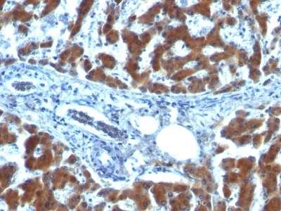 Formalin-fixed, paraffin-embedded human Ovarian Carcinoma stained with RBP1 (RBP/872)