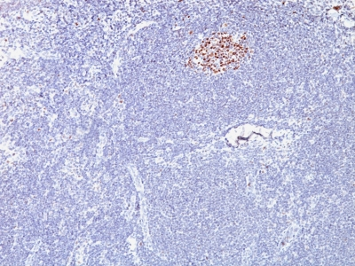 Formalin-fixed, paraffin-embedded human Lymphoma stained with bcl-6 Monoclonal Antibody (SPM62).
