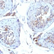 Formalin-fixed, paraffin-embedded human Testicular Carcinoma stained with SHBG Monoclonal Antibody (SHBG/245)