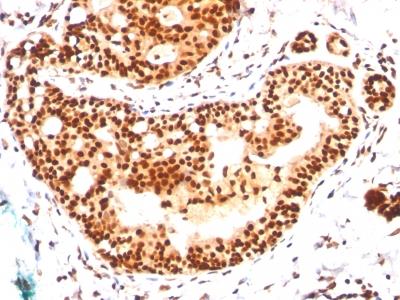 Western Blot of HeLa Cell Lysateusing SUMO-2 Monoclonal Antibody (SM23/496)